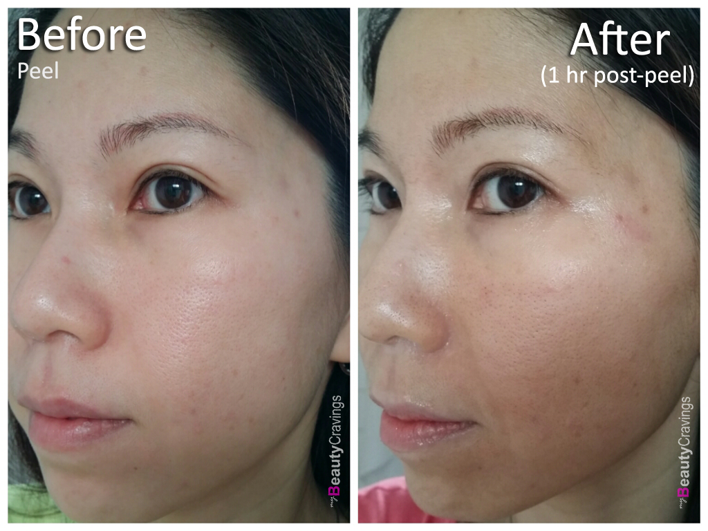 Day 1 - Before vs Post-1hr (side)