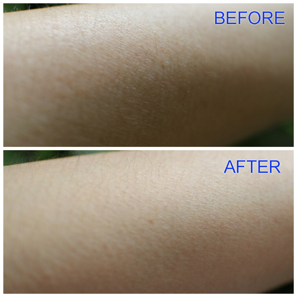 Review Of 5 Acid Body Peel From MUAC
