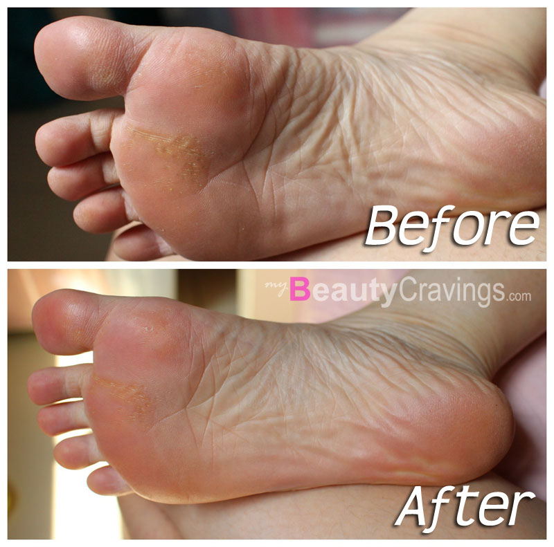Baby Foot Chemical Peel Do It Yourself Foot Peel Peeling
