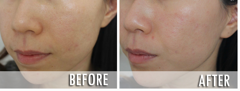VI Precison Peel Before After