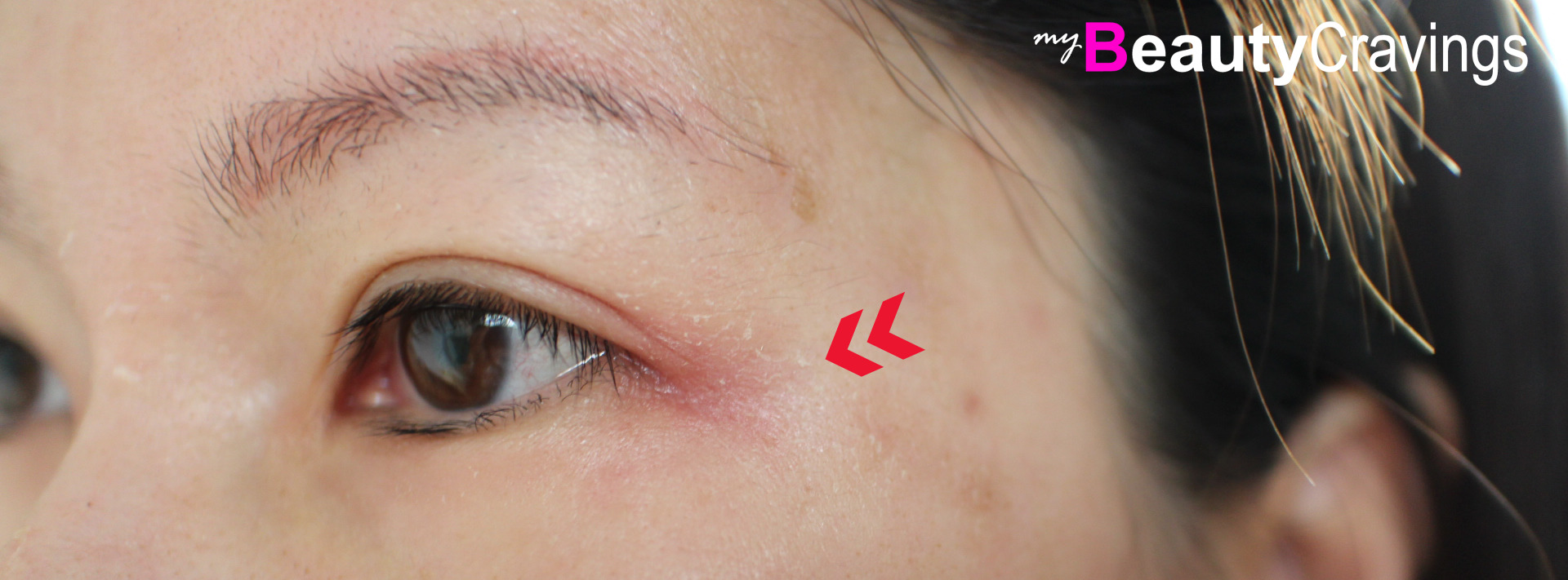 Corner of eye - red and dry (VI Precision Peel)