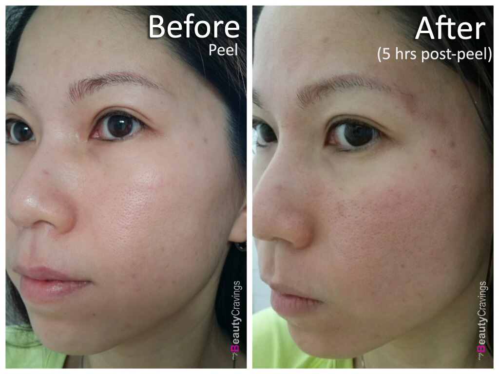 VI Precision Peel - Before vs After (5 hrs post-peel)