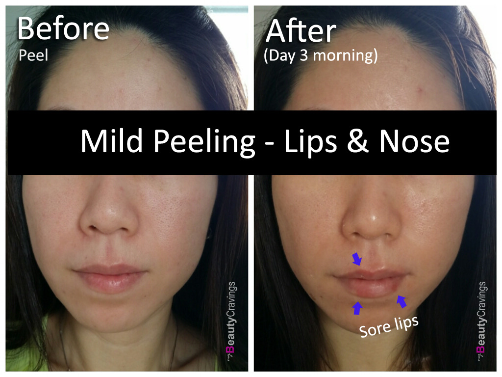 Day 3 - Morning (VI Precision Peel)