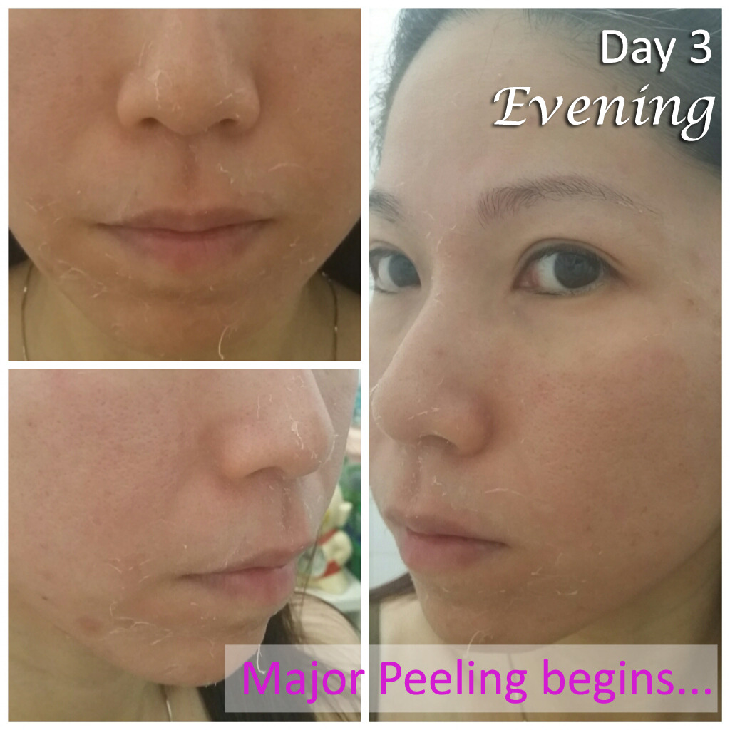 Day 3 - Evening (VI Precision Peel)