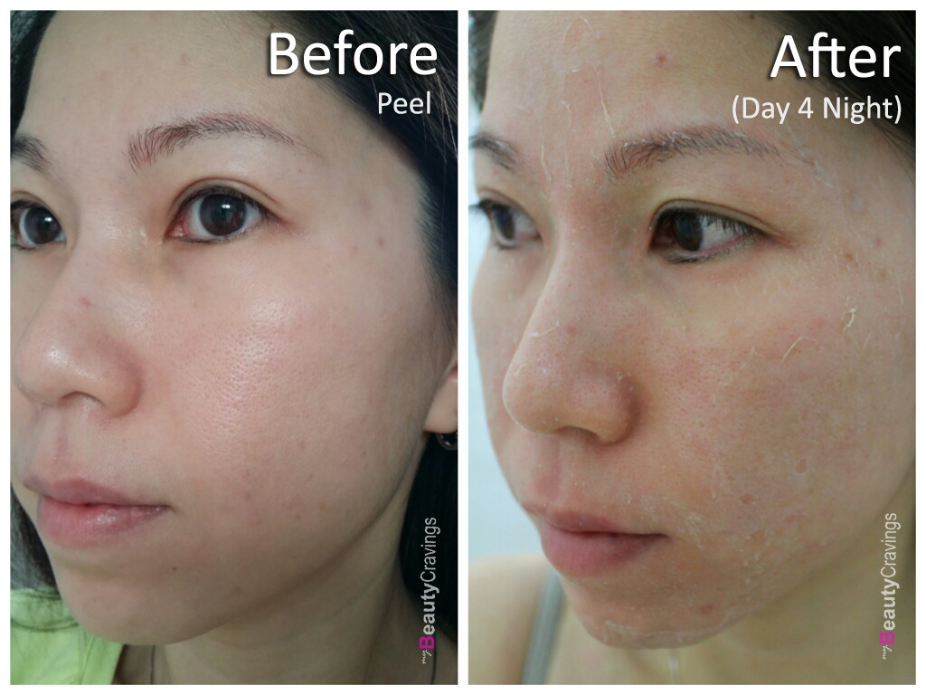 Day 4 - Night (VI Precision Peel)