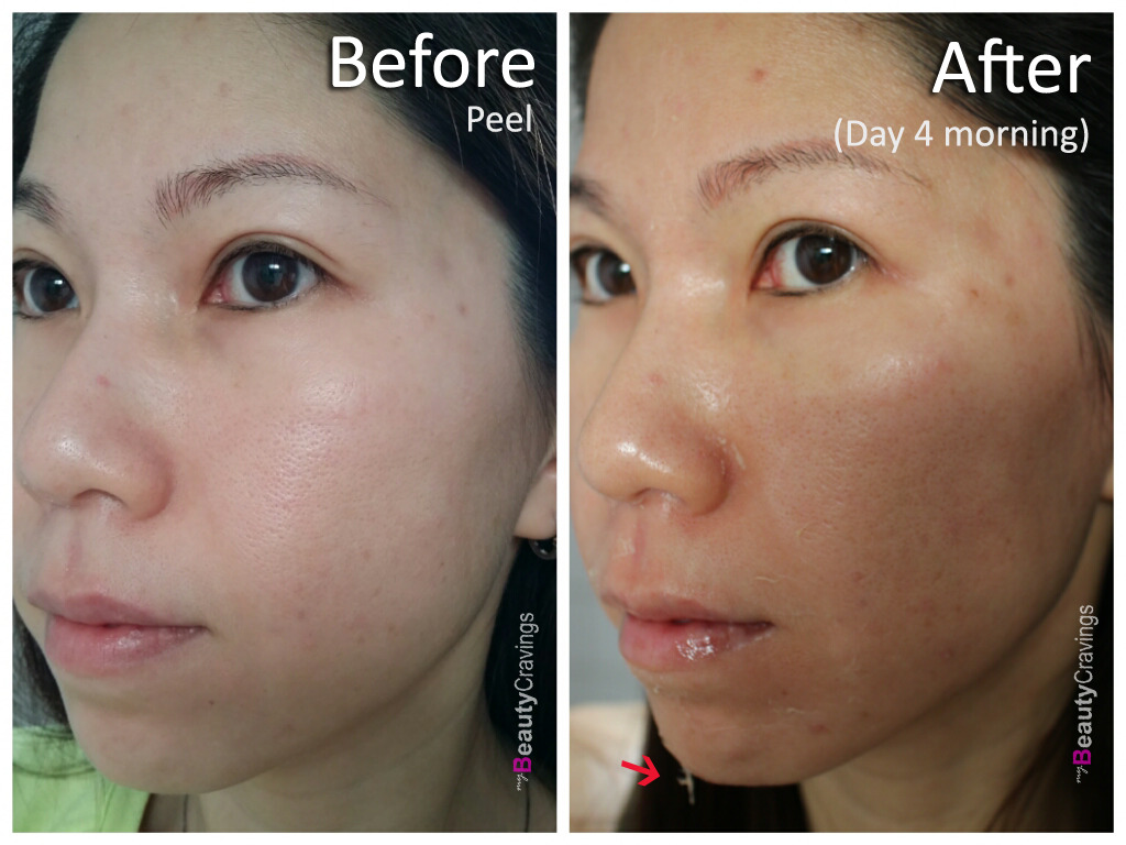 Day 4 - Morning (VI Precision Peel)