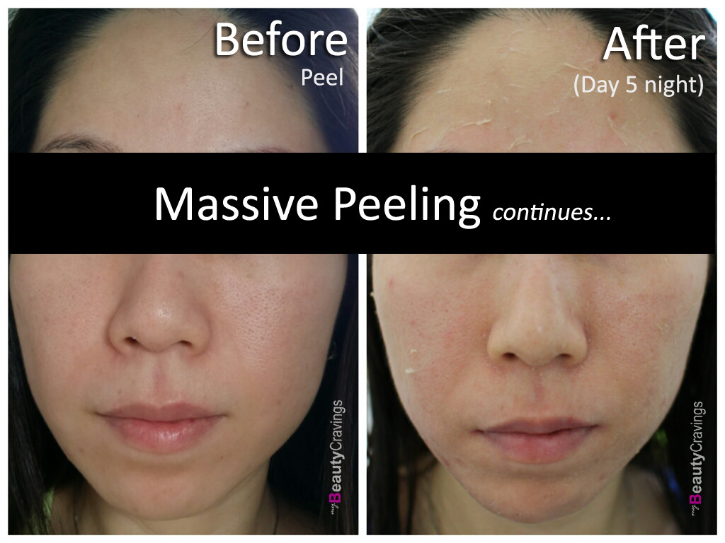 Day 5 Night (VI Precision Peel)
