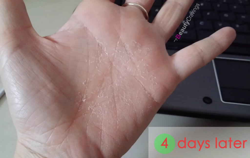 40% Lactic Acid Peel MUAC - 4 days later (hand)