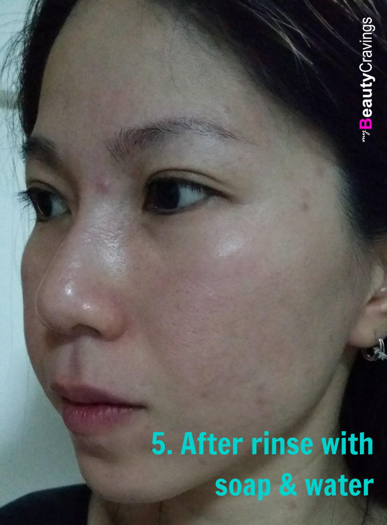 40% Lactic Acid Peel MUAC - After