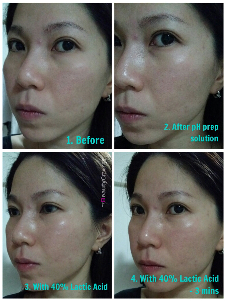40% Lactic Acid Peel MUAC - Before & After