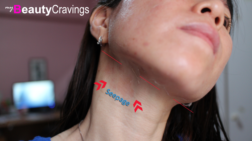 Neck Peeling and Seepage (VI Precision Peel)