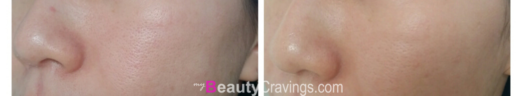 Pores are tighter (VI Precision Peel)