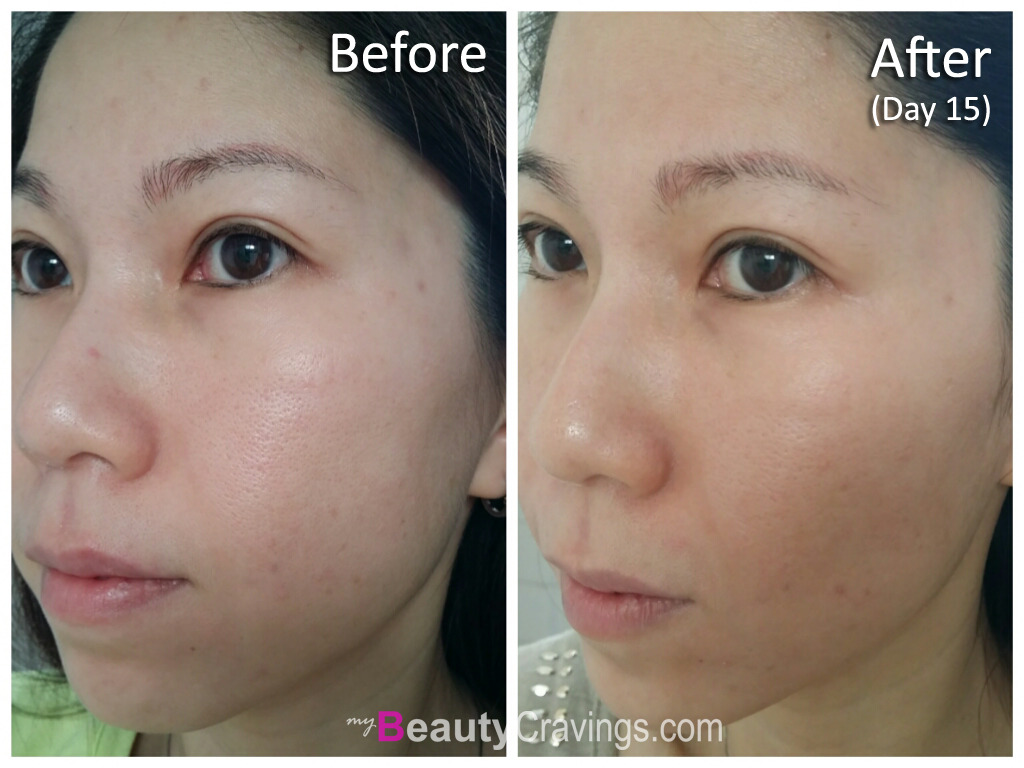 Before & After (Day 15) - VI Precision Peel
