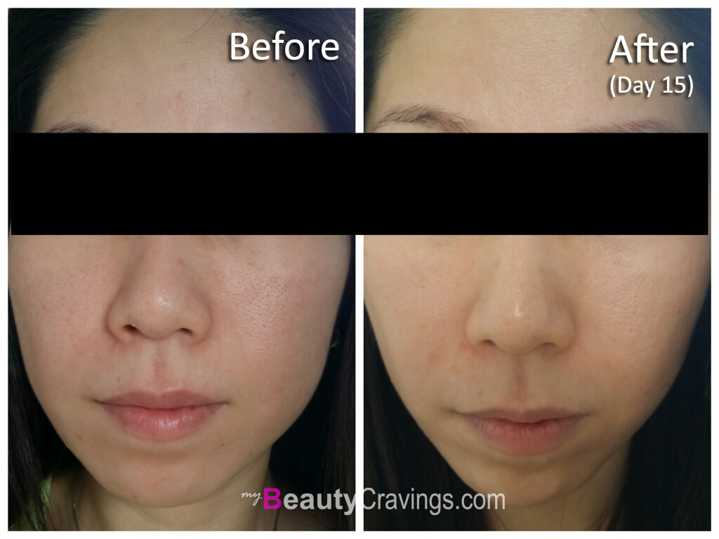 Before - After (Day 15) - VI Precision Peel