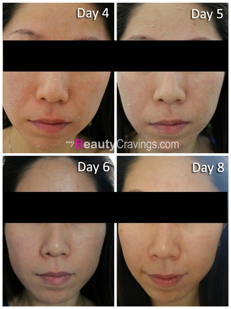 Day 4 to 8 (VI Precision Peel)