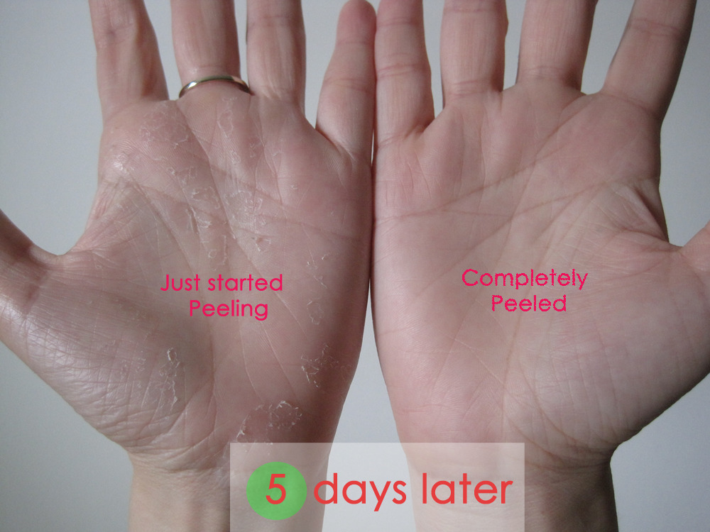 Left vs Right Palm (Peeling vs Peeled)
