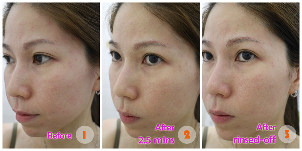 Before-After 40% Glycolic Acid (MUAC)