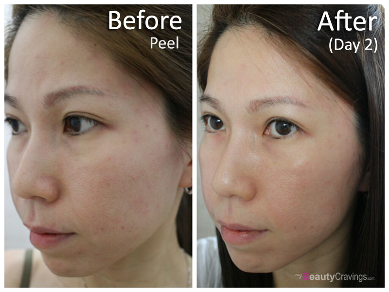 Day 2 - 40% Glycolic Acid (MUAC)