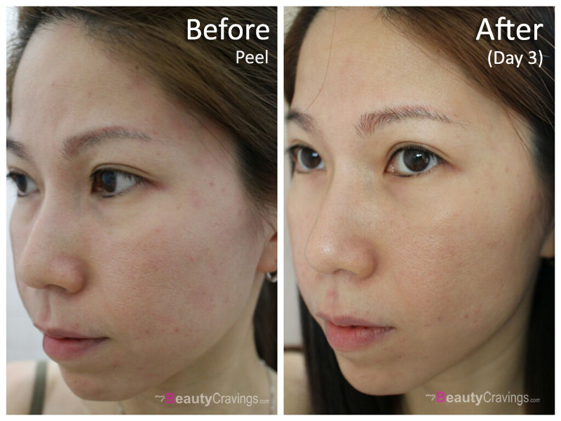 Day 3 (40% Glycolic Acid peel - MUAC)