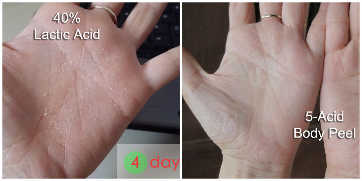 Hand Peel (Other acids)