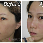 Laser Facial by Gangnam Laser Clinic | Part 2 – Pimples Cleared in 7 Days