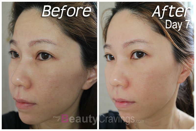 Before-After (Day 7) - Laser Facial by Gangnam Laser Clinic
