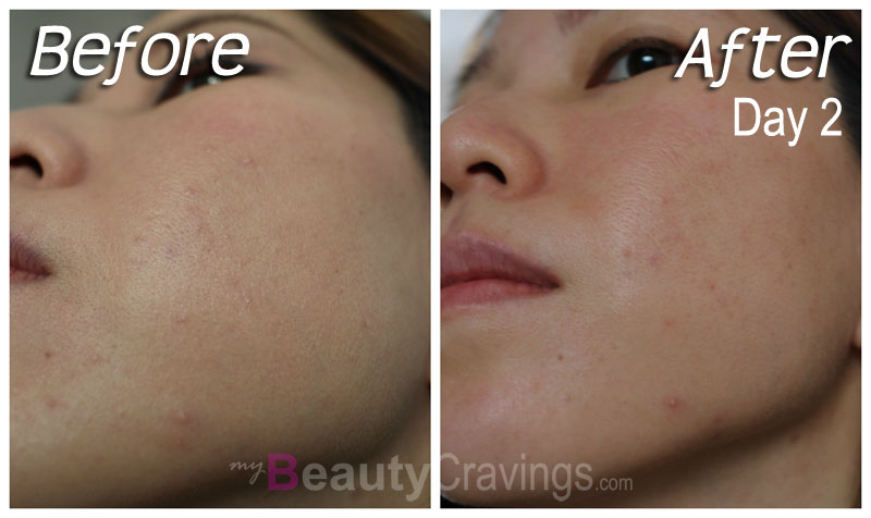 Before-After (Day 2) - Laser Facial by Gangnam Laser Clinic