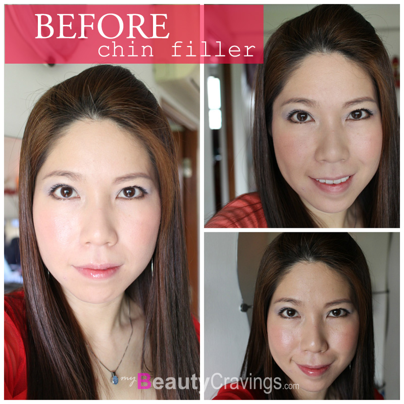 Before Chin Filler Augmentation