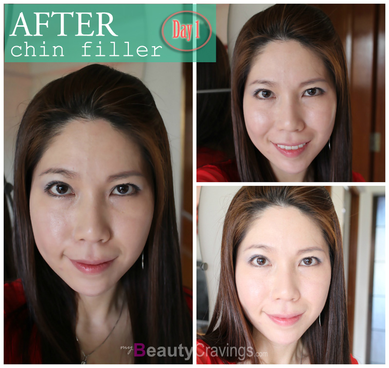 Chin Filler - After (Day 1)