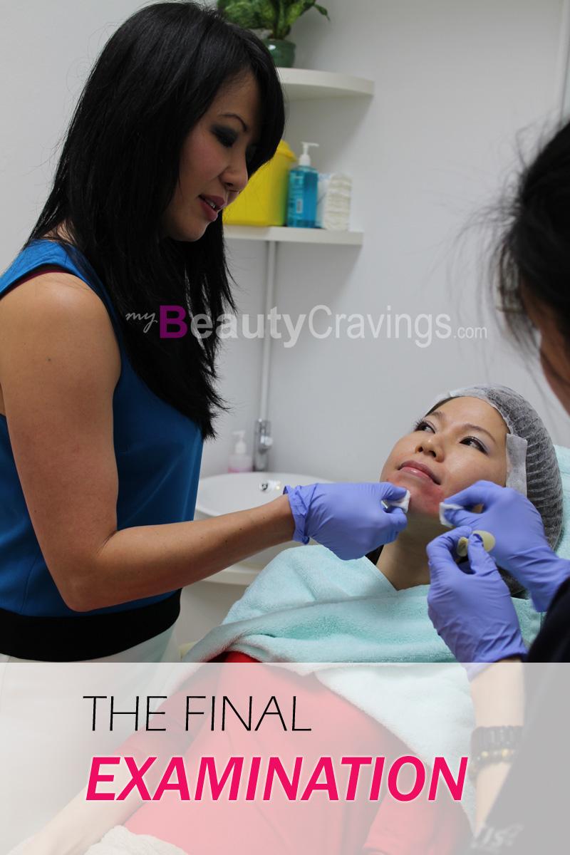 (Chin Filler Treatment)