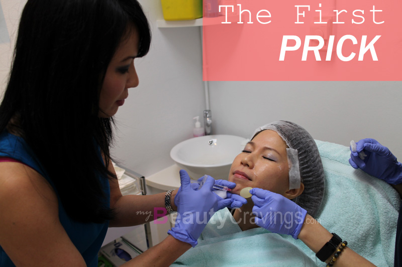 Chin Filler - The First Prick