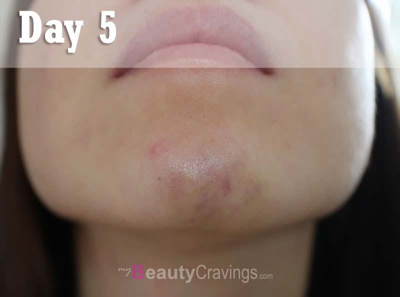 Day 5 - Chin Filler