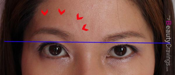 Before Botox (Forehead Wrinkles)