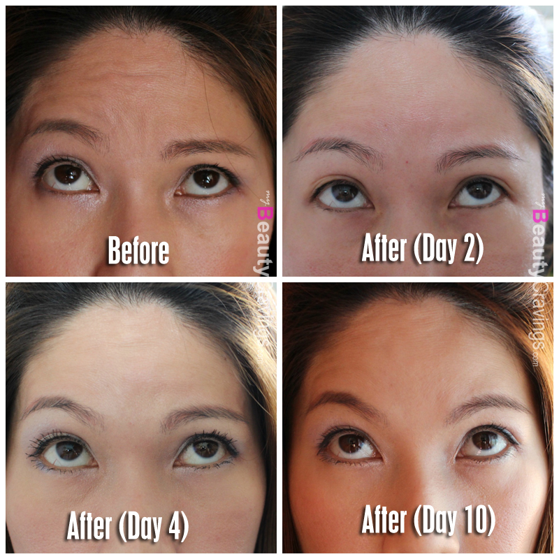 Botox Review at Cutis Medical Laser Clinics | $208 to get rid of