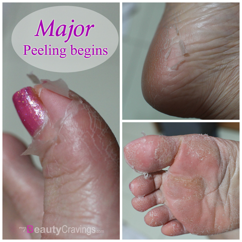 Skinlite Exfoliating Foot Mask