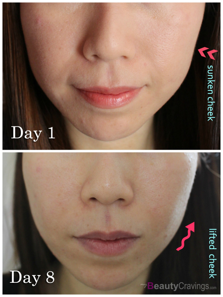 Before-After (Laser Facial at Gangnam Laser Clinic)