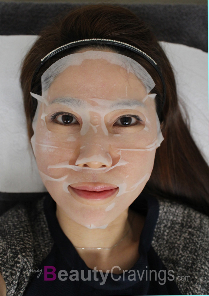 Laser Facial (Gangnam Laser Clinic)