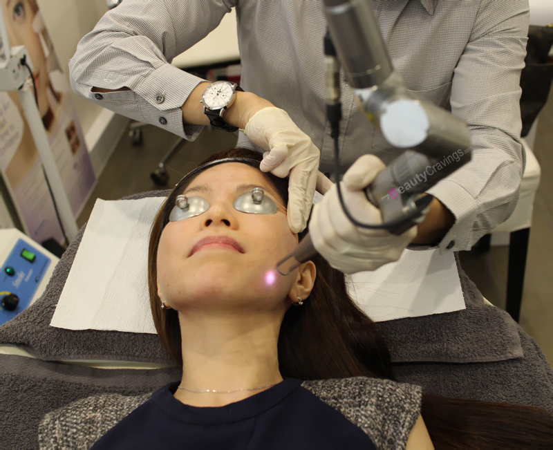Can Laser Facial improve laugh lines? | Review of Gangnam Laser