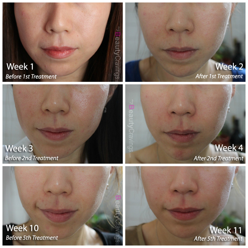 Before-After - can laser facial improve skin laxity?