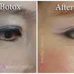 Botox Under-Eye Wrinkles
