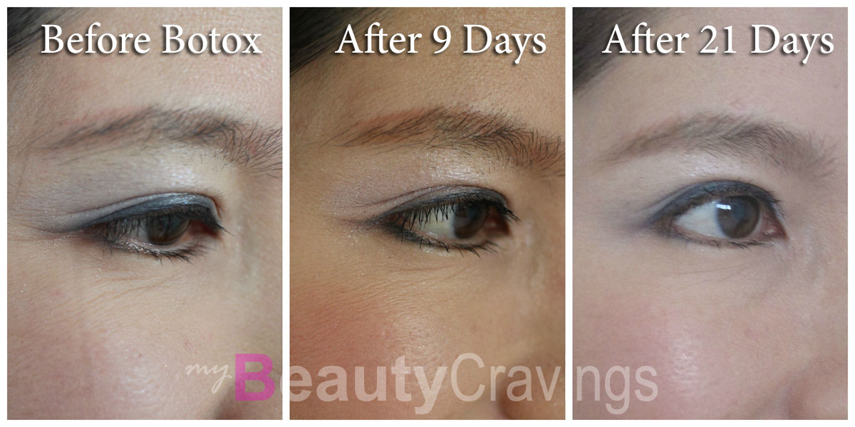 Review: Erase Under-eye Wrinkles with Botox » myBeautyCravings