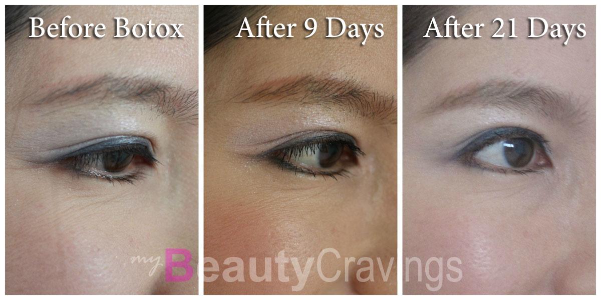 Under-eye wrinkles Botox