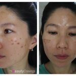 VI Precision Peel | Unexpected pain & long recovery