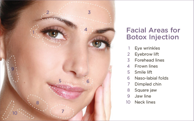 Botox pricing by areas