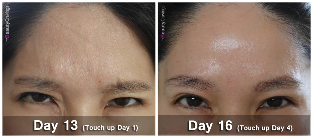 Xeomin Botox Yvonne Goh