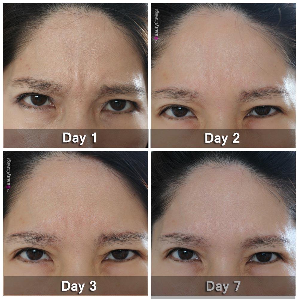 Xeomin Botox (Glabellar)