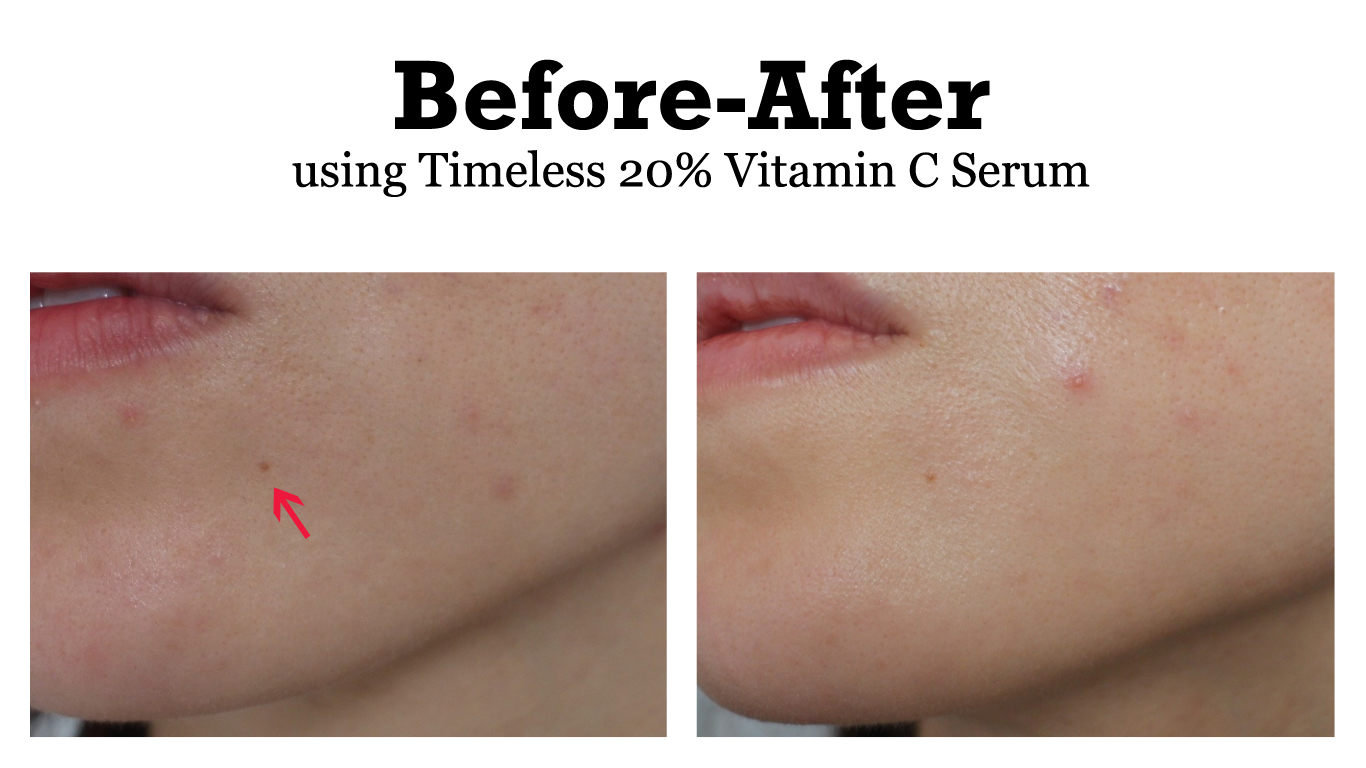 Timeless 20% Vitamin C Serum