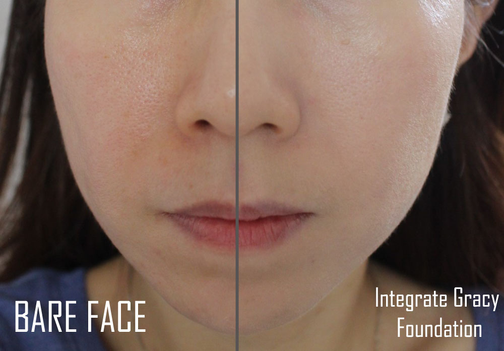 Integrate Gracy Foundation Before After