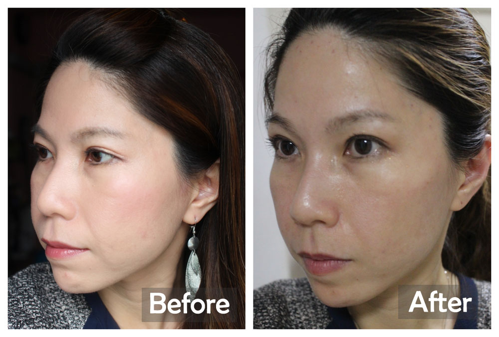 Before-After on Day 1 (Astute Medical Aesthetics)