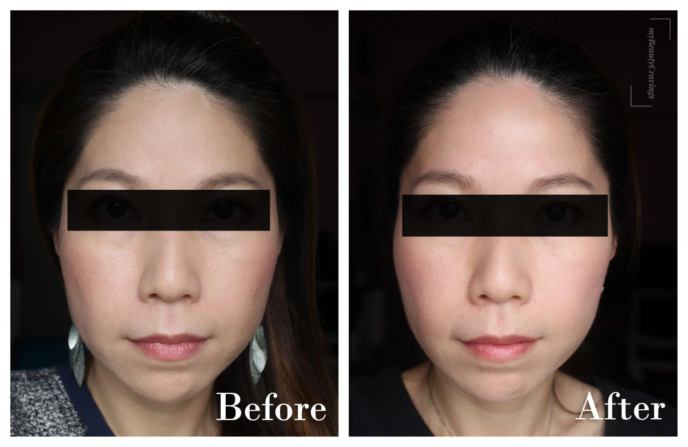 Before-After (Front Smile) - Astute Medical Centre Facial Harmony Program